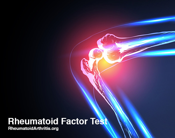 RF Test: What is the Normal Range for a Rheumatoid Factor