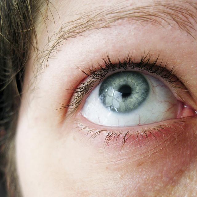 RA Eye Problems: What Eye Problems Result from Rheumatoid