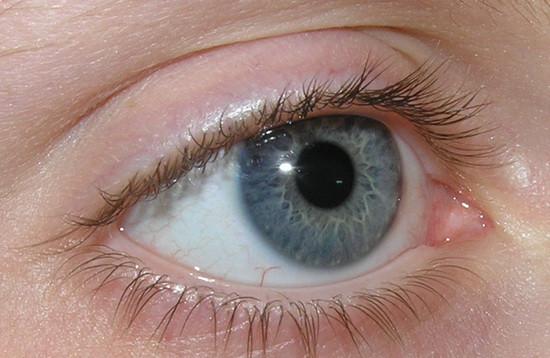 Ra Eye Problems What Eye Problems Result From Rheumatoid