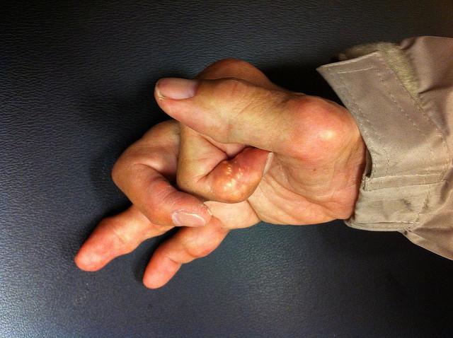 Psa Facts How Prevalent Is Psoriatic Arthritis Rheumatoidarthritis Org