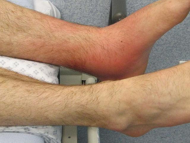 PsA Treatment: How Do You Treat Psoriatic Arthritis