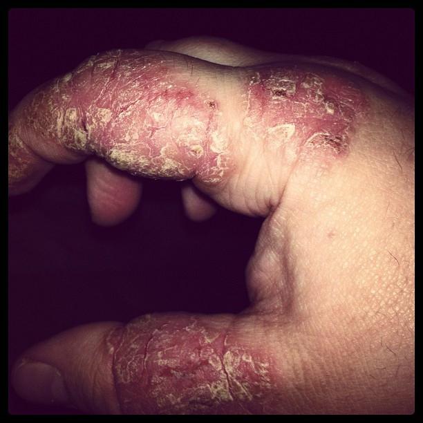 hand psoriasis