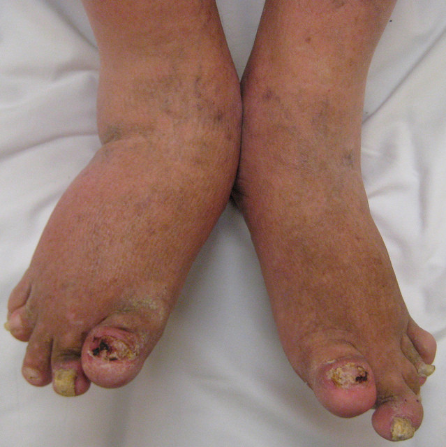 PsA Symptoms: What are the First Signs of Psoriatic