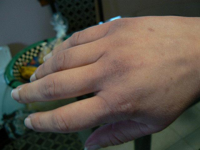 swollen fingers