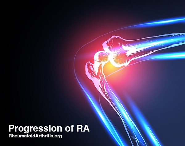 RA Progression: What are the Signs of Rheumatoid Arthritis