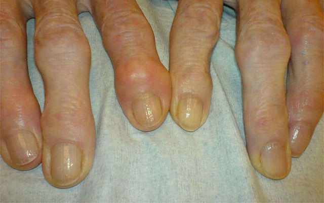 Rheumatoid Nodules Are Rheumatoid Nodules Dangerous