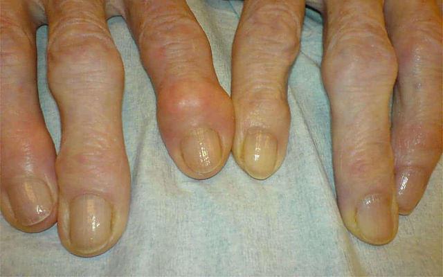 Rheumatoid Nodules: Are Rheumatoid Nodules Dangerous